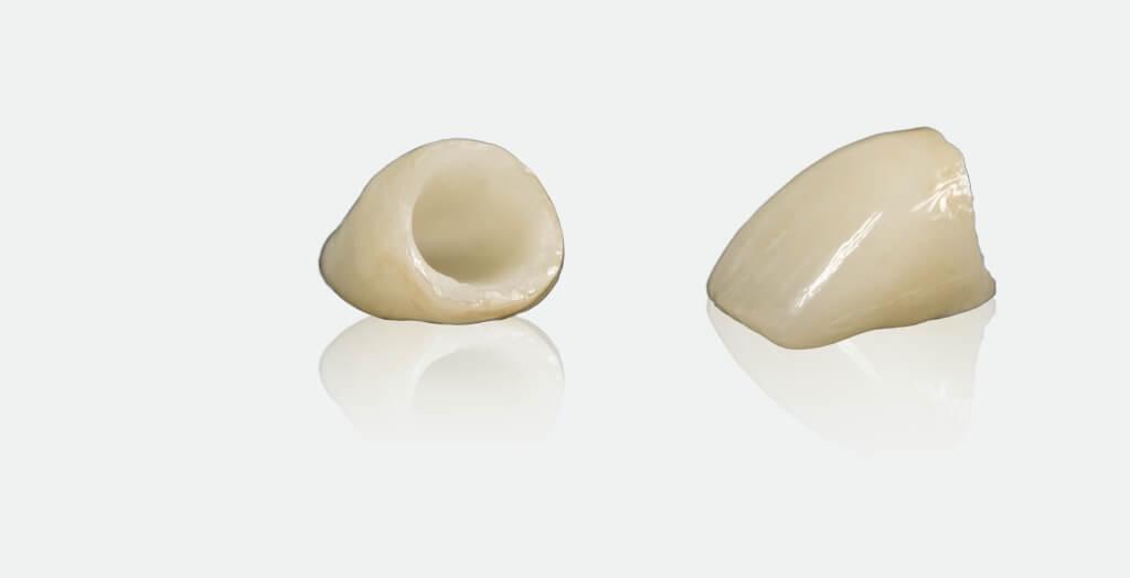 Безметалловая керамика