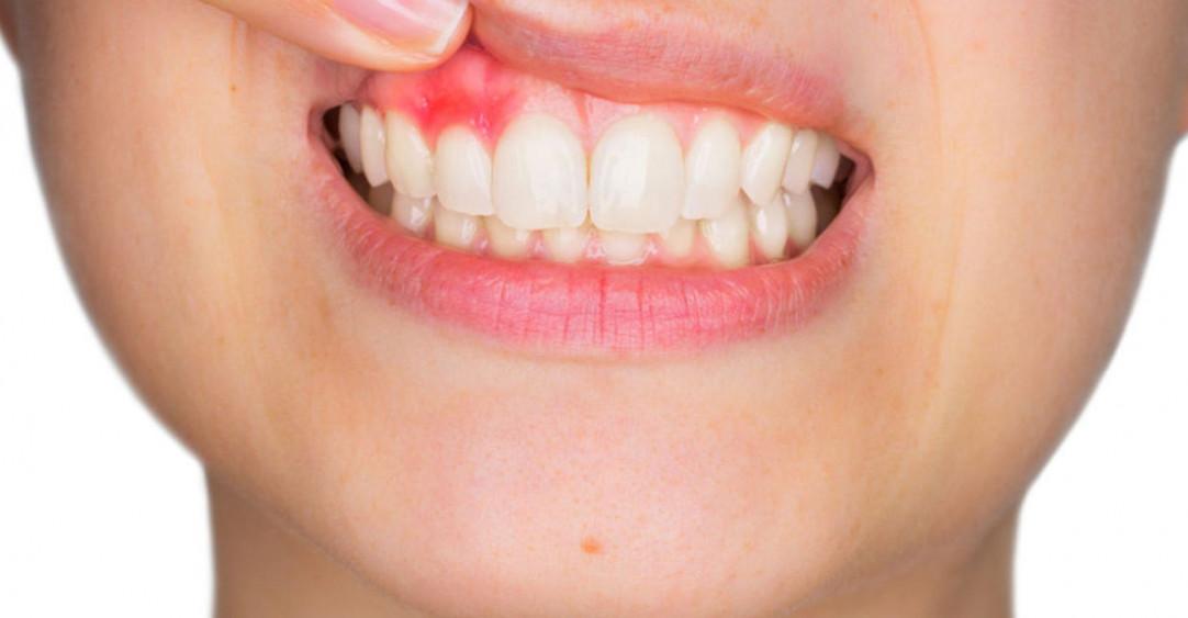 Зубной абсцесс или гнойник — что за зверь?